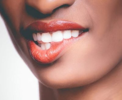 teeth 400x329 - 4 quick ways to whiten your teeth